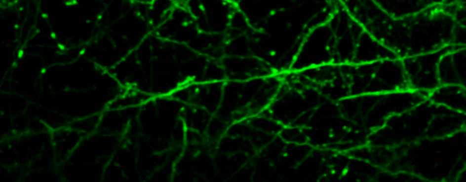 in-vivo imaging of dendrites and synapses
